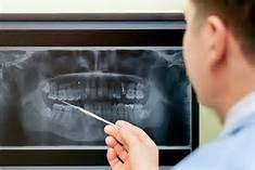 cosmetic-dentist-digital-imaging-bellmore