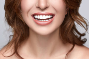 porcelein veneers
